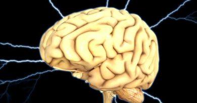 mozak ist